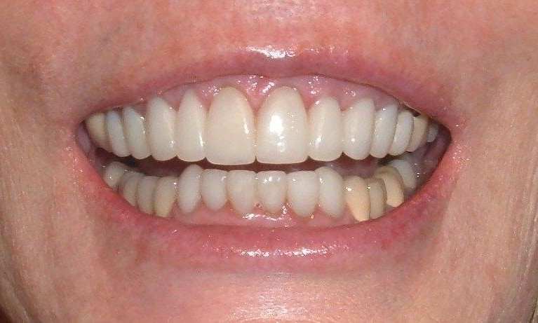 Veneers | Poudre Valley Family Dental