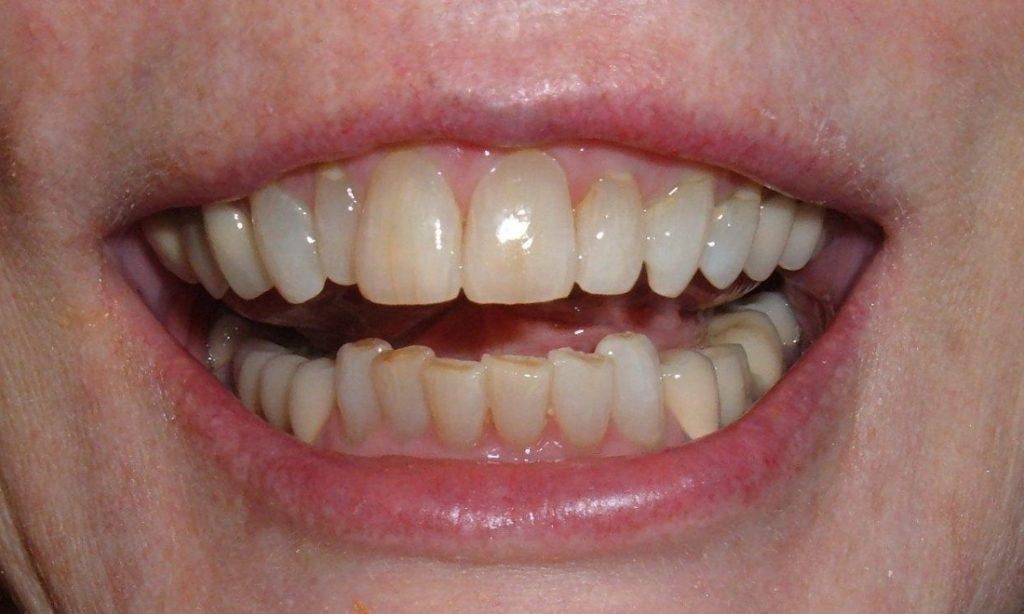 Veneers | Poudre Valley Family Dental