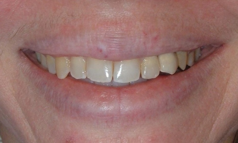 Implant Restoration Services | Poudre Valley Family Dental