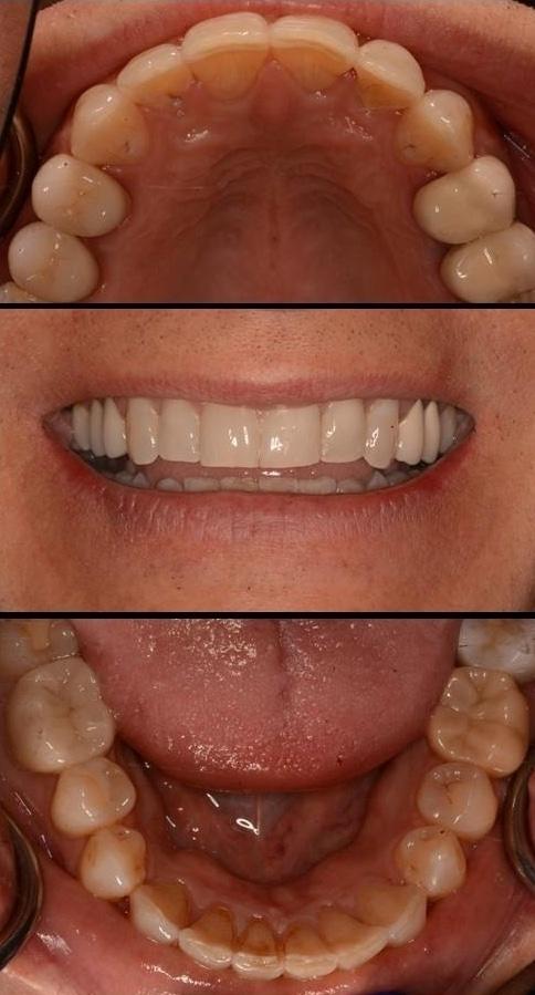 Invisalign | Poudre Valley Family Dental