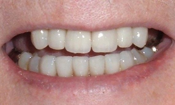 Ceramic Tooth Colored Crowns | Poudre Valley Family Dental