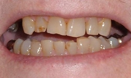 Ceramic Tooth Colored Crowns   Poudre Valley Family Dental