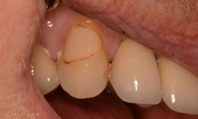 Before & After Pictures | Poudre Valley Family Dental