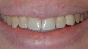 Braces | Poudre Valley Family Dental