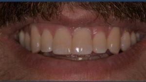Gingivitis | Poudre Valley Family Dental