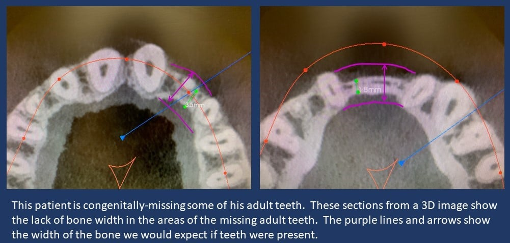 Missing Teeth | Poudre Valley Family Dental